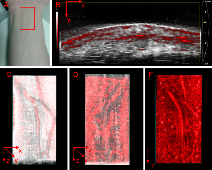 Photoacoustic imaging (optoacoustic imaging) is an imaging modality based on the photoacoustic effect.